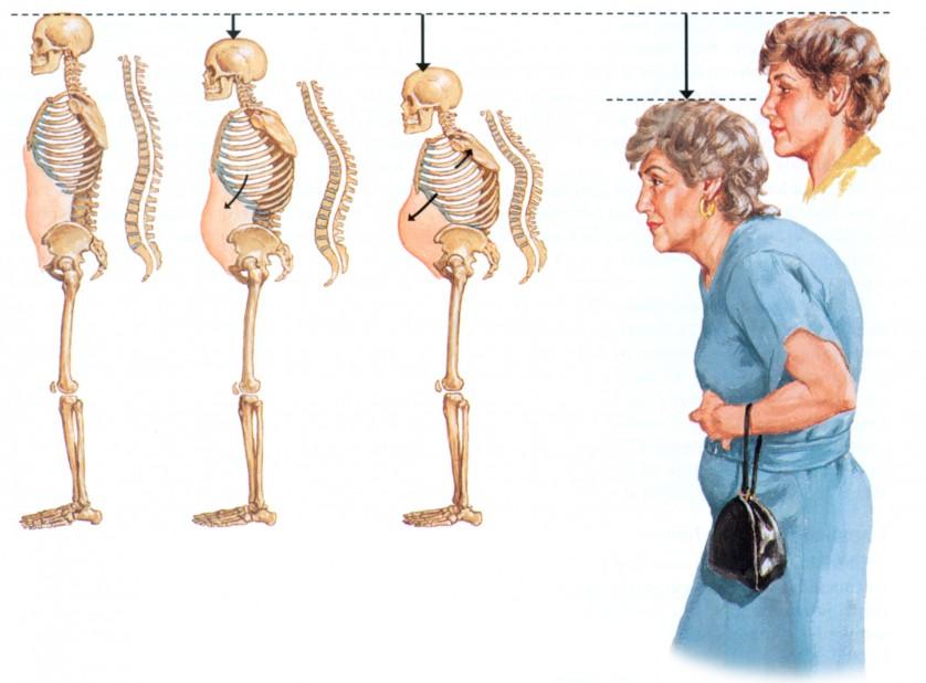 osteoporoz (1)