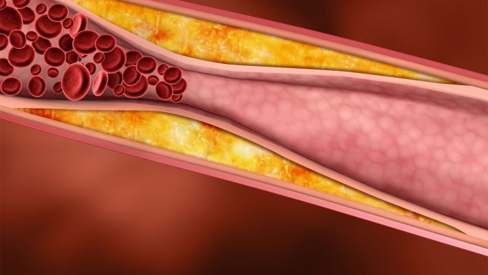 ХОЛЕСТЕРИН – фактор риска хронических неинфекционных заболеваний